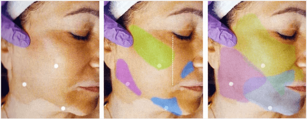 Mid/Lower Facial Rejuvenation: The Non-Surgical Facelift