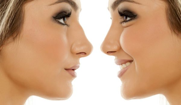 Nose Imperfections
