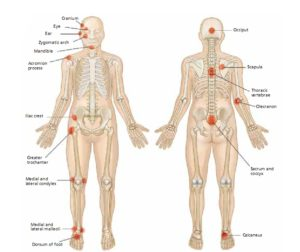 Common Sites for Pressure Points
