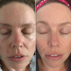 Galvanic spa treatment - Before and after