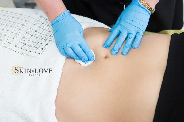 Thermage Works Skin Tightening: Thermage FLX Skin Treatment for an Overall Younger Looking Appearance.