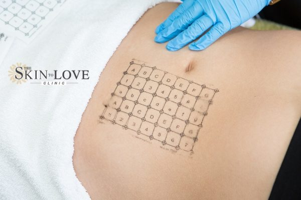 Thermage Skin Tightening: Thermage FLX Skin Treatment. Thermage helps all layers of the skin. Thermale FLX for Sagging Skin.