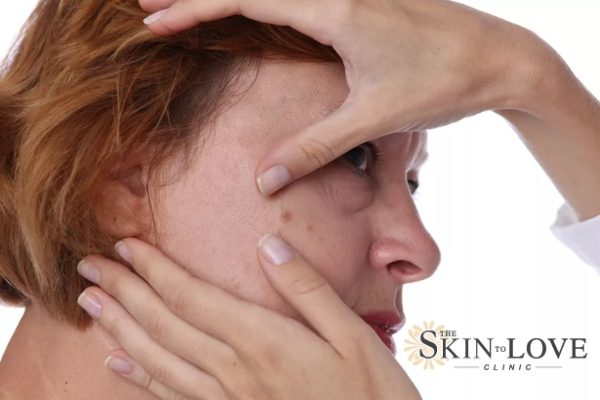 Skin Tag Removal What Are Skin Tags The Skin To Love Clinic