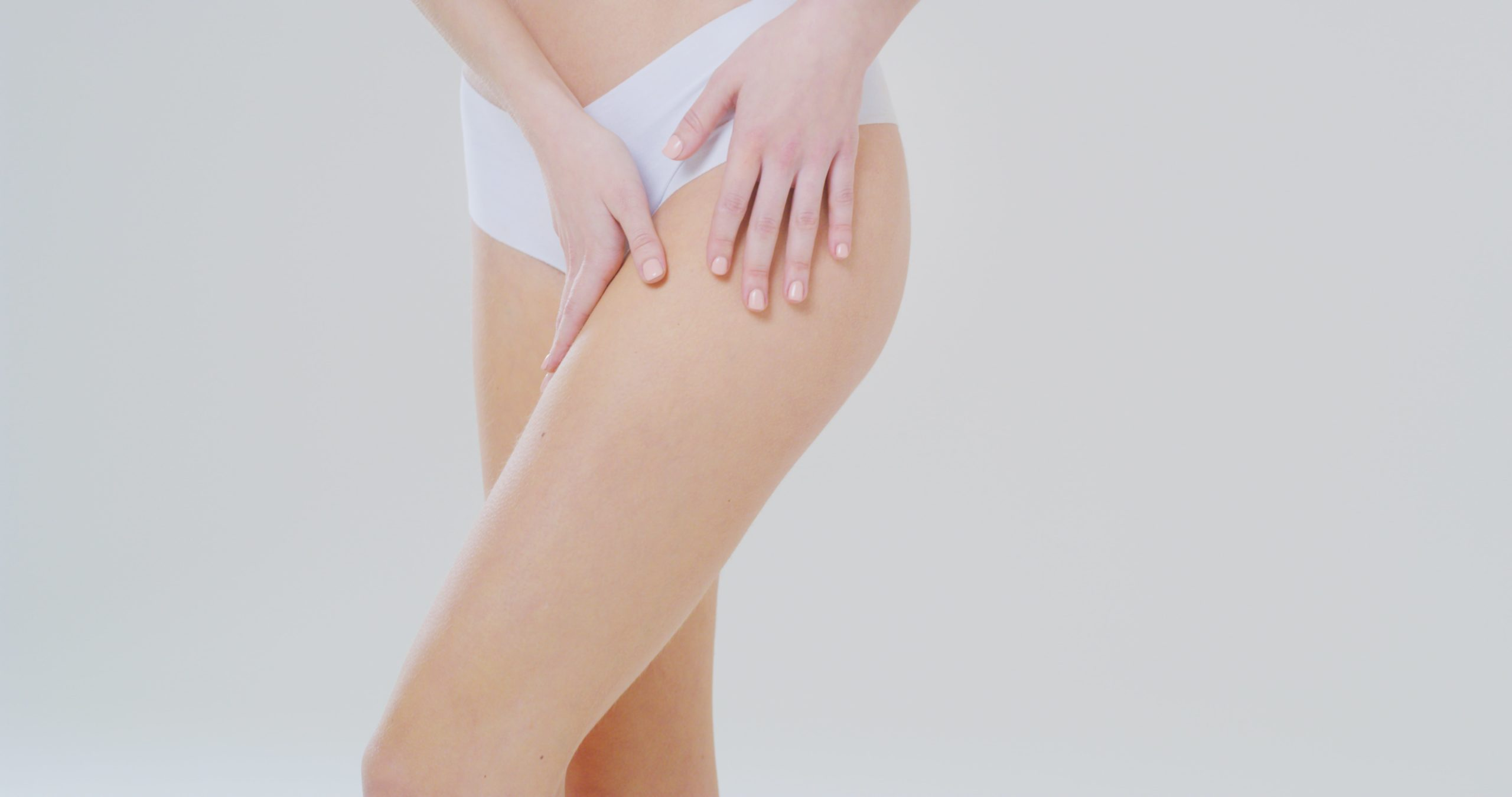 best solution for stretch marks