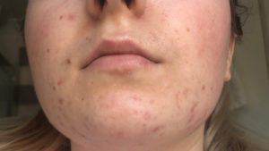 regenlite acne treatment - after