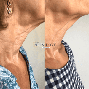 Before & after, profhilo skin treatment