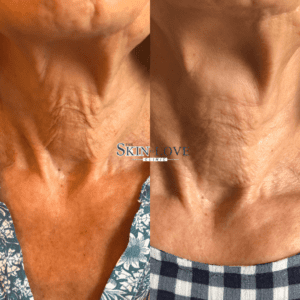 skin tightening treatment, before and after photos