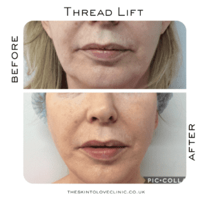 Thread Lift Results, Before & After Photos