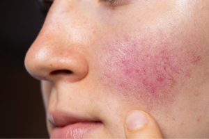 Rosacea Skin Care: Intense pulsed Light can be used to Reduce the Symptoms of Rosacea, including Visible Blood Vessels