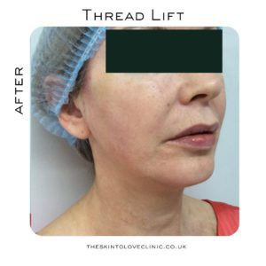 Thread Lift Review