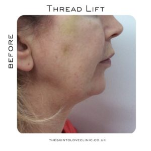 How Is Thread Lift Worth it?